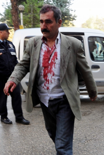 Gaziantep'te muhtarlık kavgası: 22 yaralı