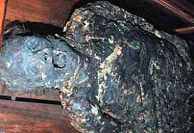 Kafatası (Mutter) Müzesi