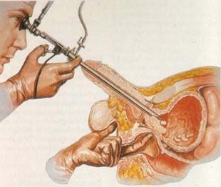 Organlar ne zaman yaşlanıyor? Organlar10